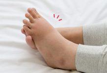 cara mengatasi kaki bengkak saat hamil